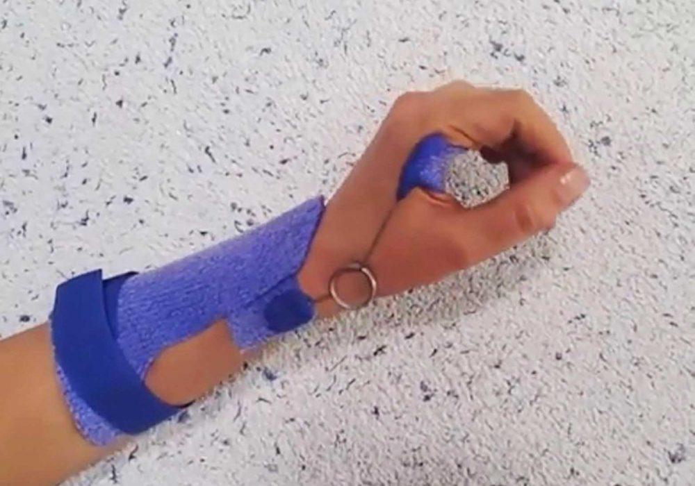 Maryam-Farzad-Dynamic-wrist-extension-splint2